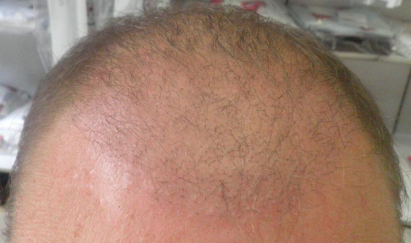 3 weeks after hair transplant