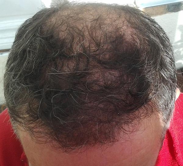 6 month result after hair transplant fue