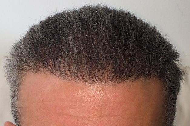 6 month result hair transplant fue safe hairpalace
