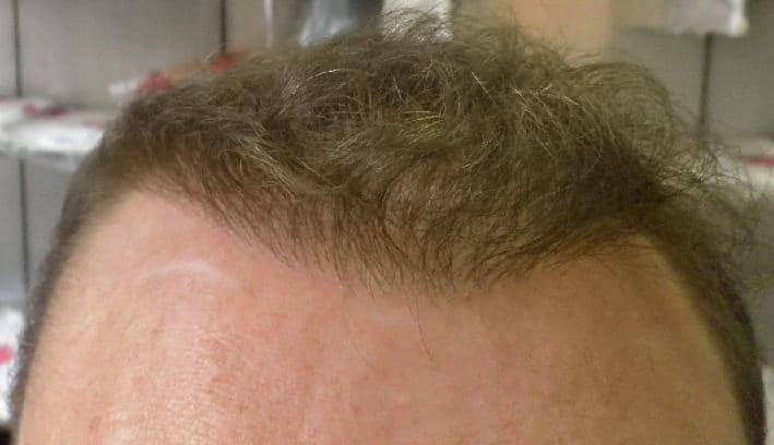 6 months after hair transplant result