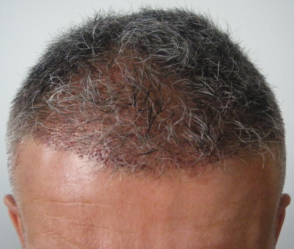 Patient after hair transplant surgery at HairPalace.