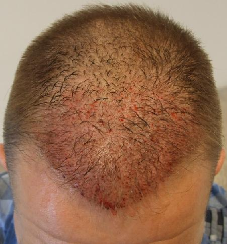 Check out the implanted grafts after the hair transplantation.