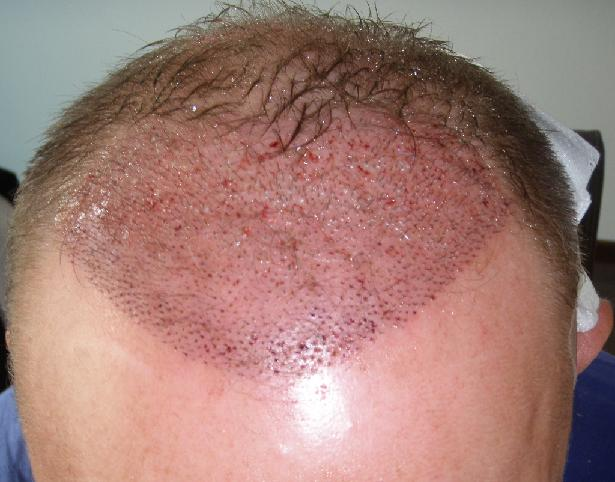 Patient right after the hair transplant surgery.