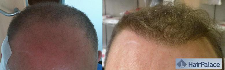 before after hair transplant