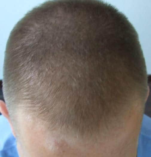 Patient before hair restoration surgery at HairPalace.