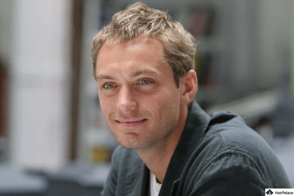Jude Law's and other celebrities' hair transplants.