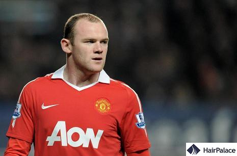 celebrity hair transplant rooney
