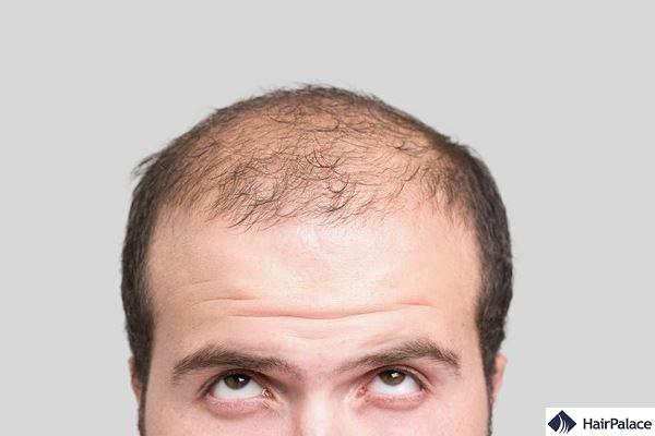 hair restoration products