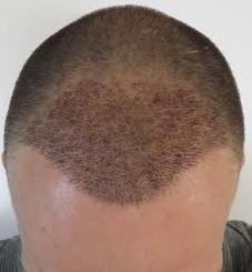 1 week after hair transplant