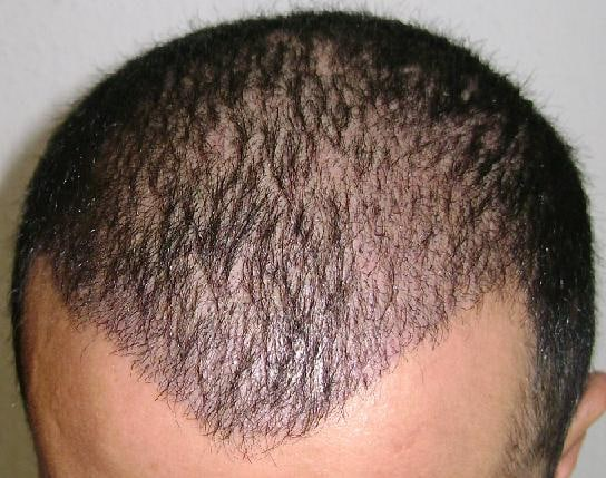 2 weeks after hair restoration