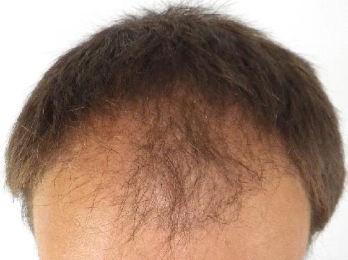 3 months after hair surgery