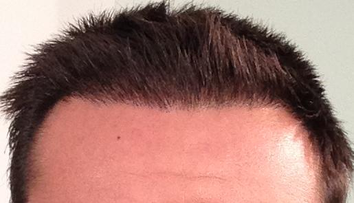 3 months result after hair transplant fue