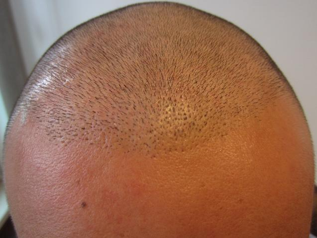 before hair implantation surgery