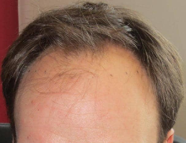 before hair transplant 2