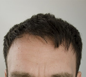 result 1 year after hair transplant