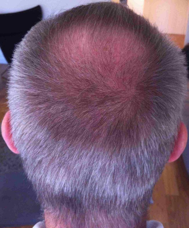 3 month after hair transplant surgery