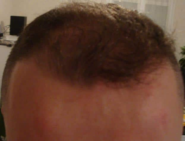 3 months after hair replacement surgery