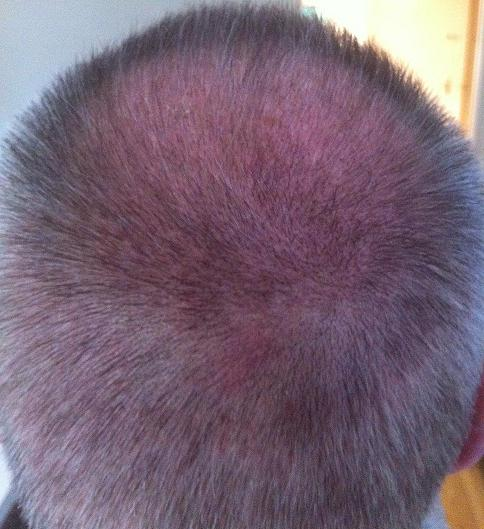 3 week result hair transplant