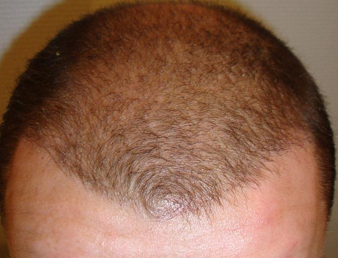 3 weeks after hair restoration