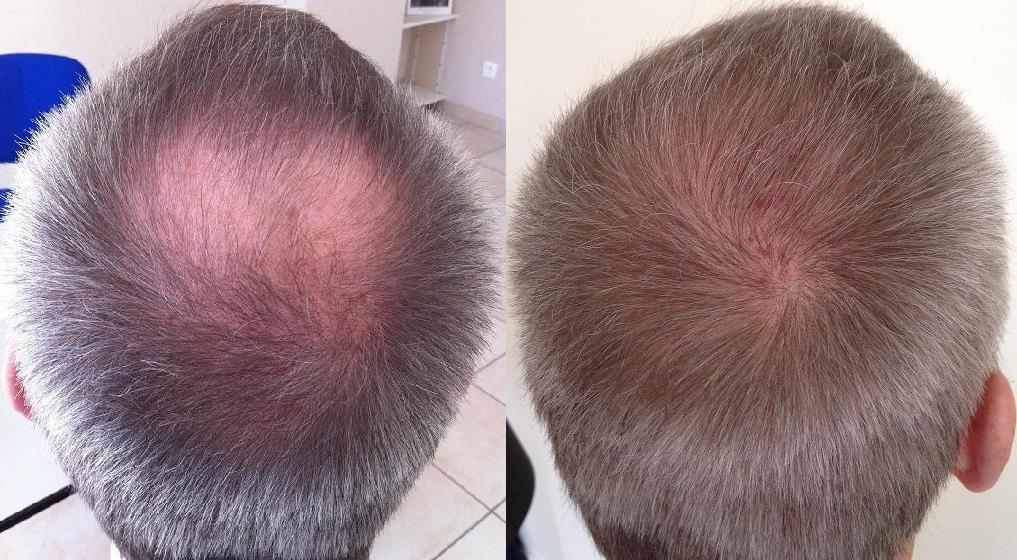 before after hair transplant hairpalace