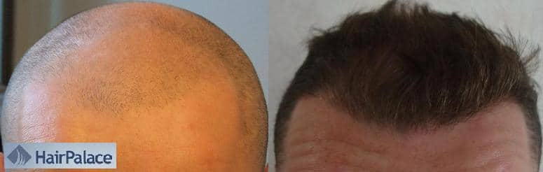 before after hair transplant result hairpalace
