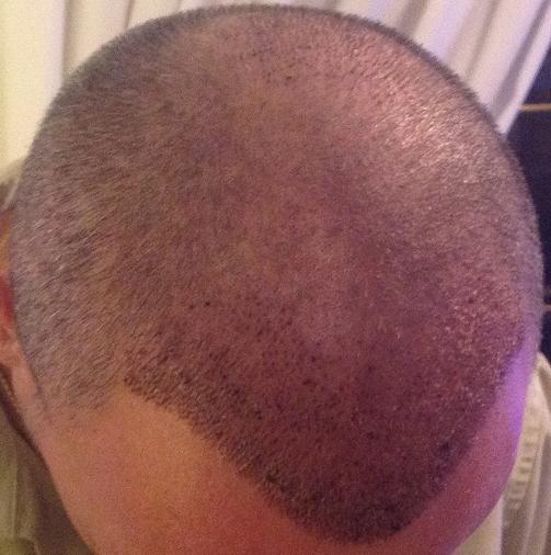 1 week control hair transplant
