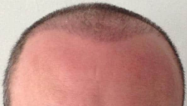 3 month result hair transplant surgery