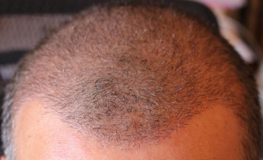 3 weeks after hair restoration