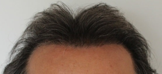 6 months after hair transplant surgery fue hairpalace