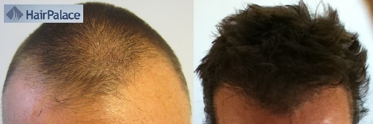 before after hair transplant surgery