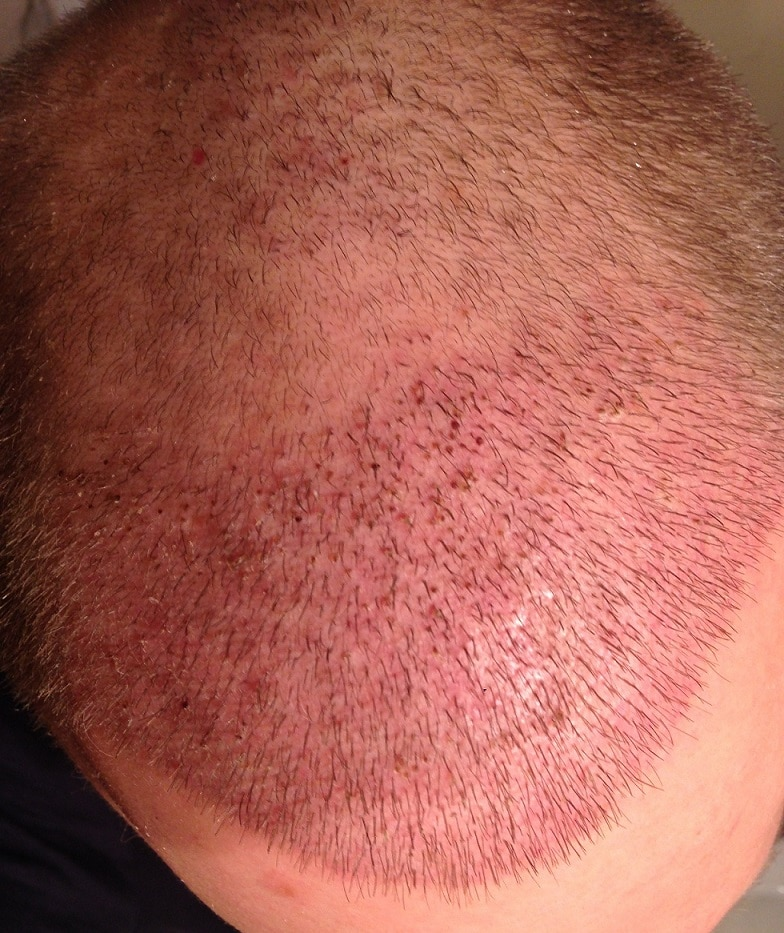 10 days after hair restoration