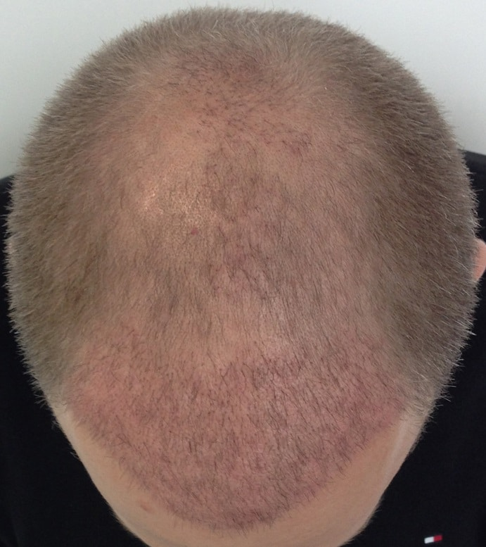 3 weeks result hair transplant
