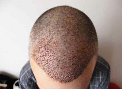 1 week after hair restoration