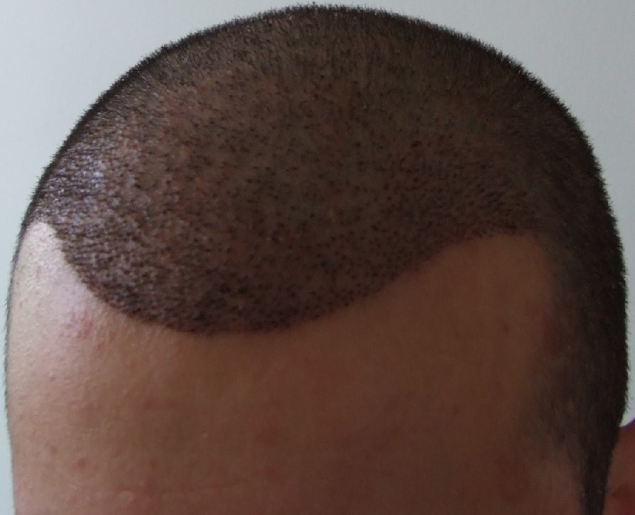 1 week after hair surgery