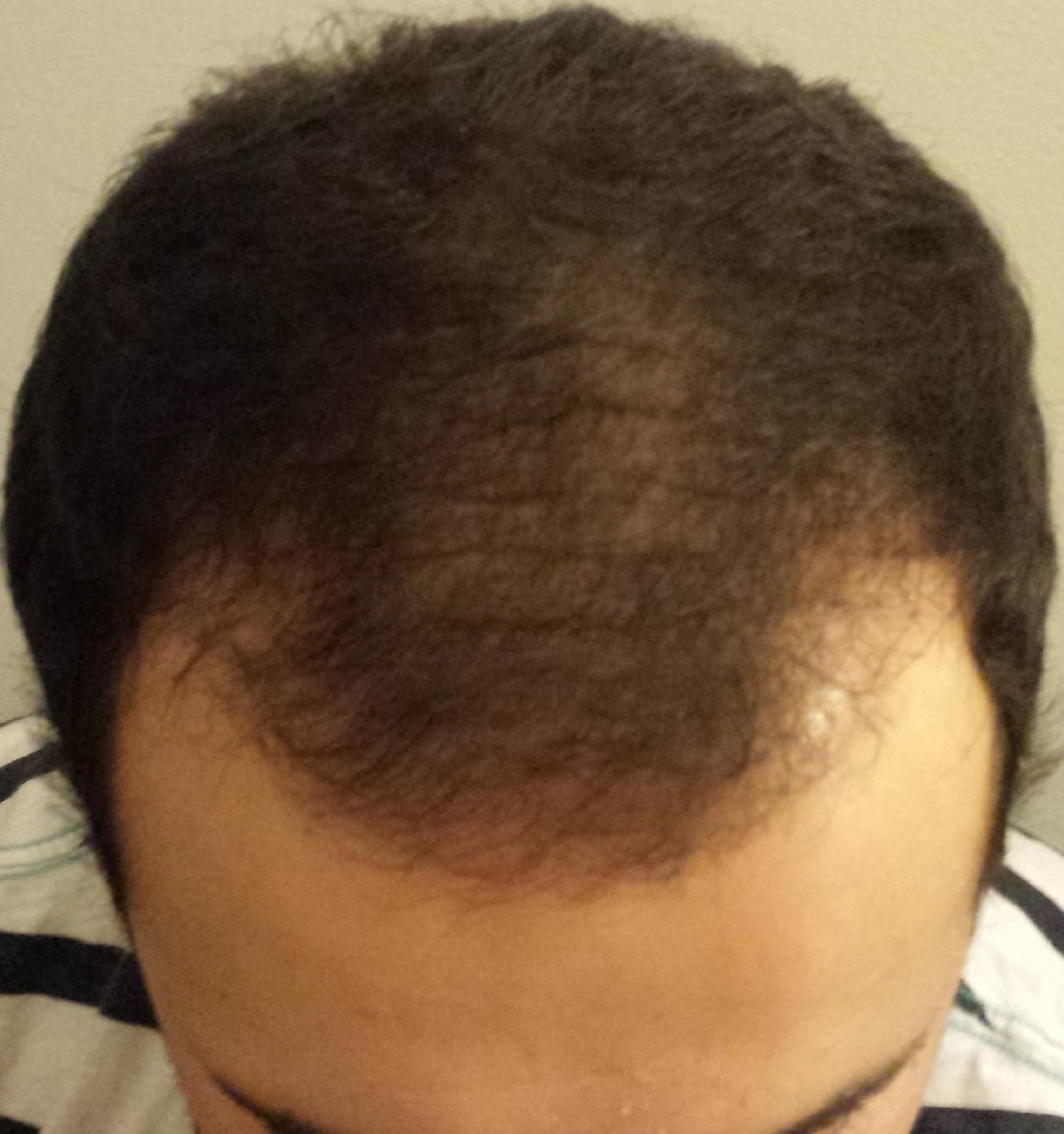 3 months after hair transplant surgery