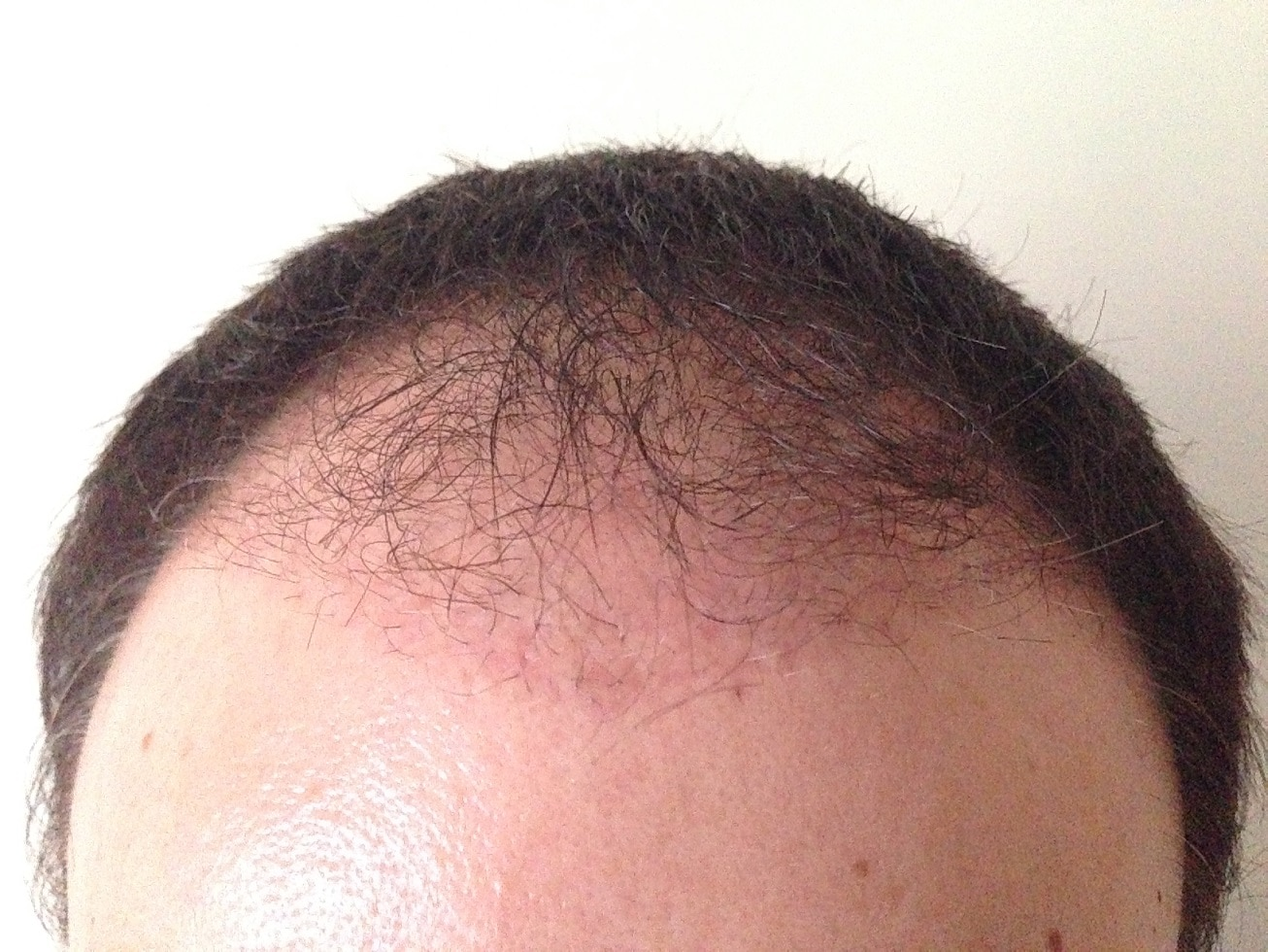 3 months after hair transplant