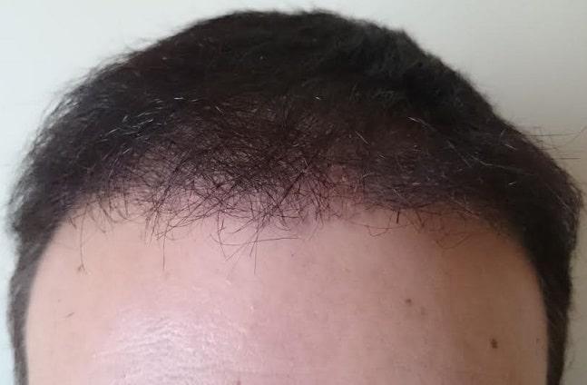6 months after hair surgery