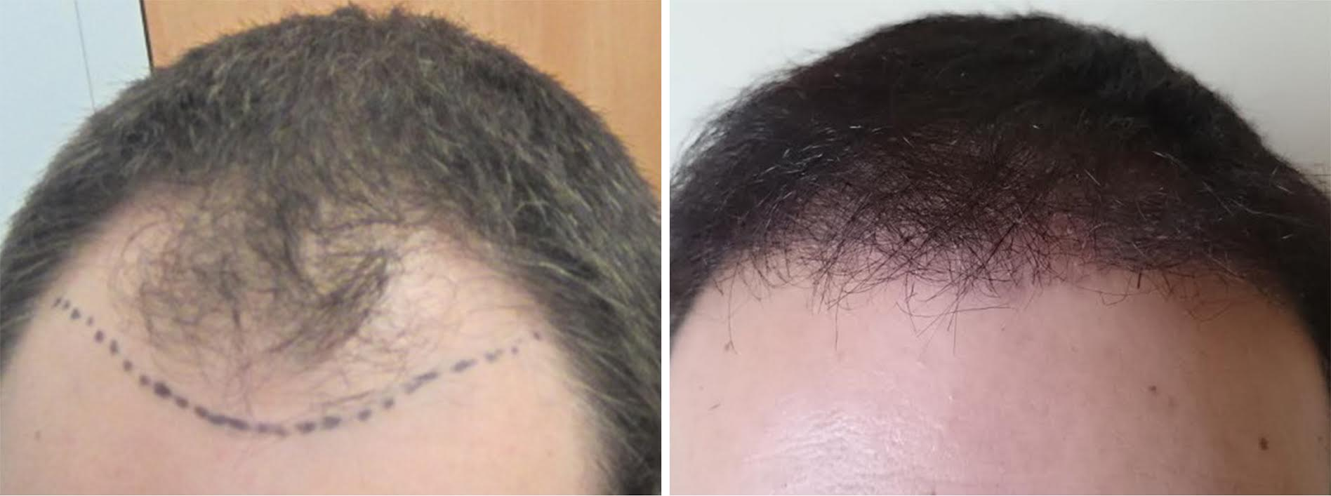 before after hair transplant surgery2