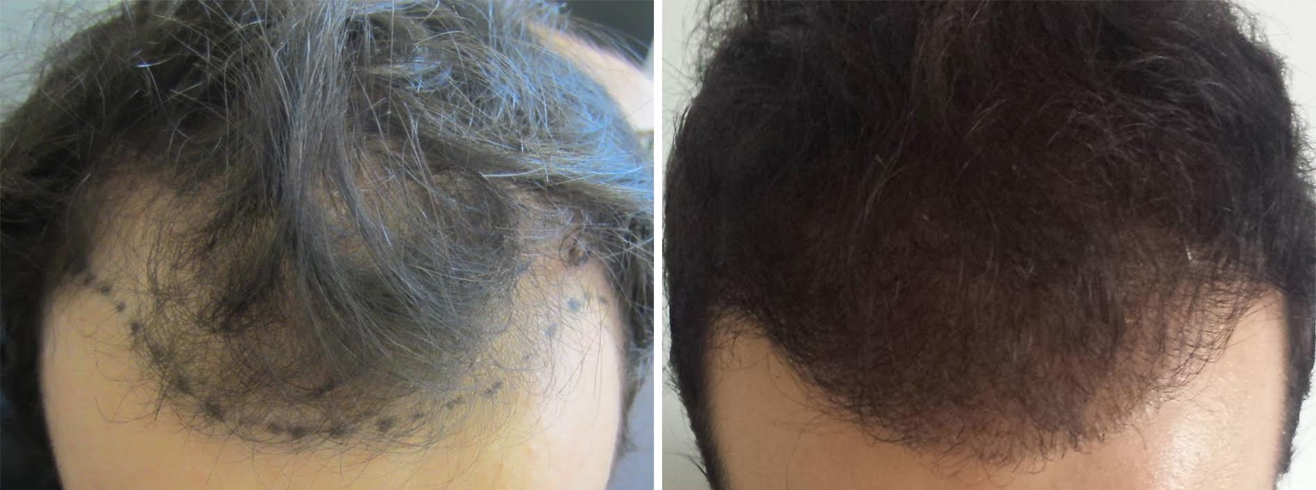 before after hair transplant2