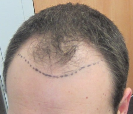 before hair transplant surgery