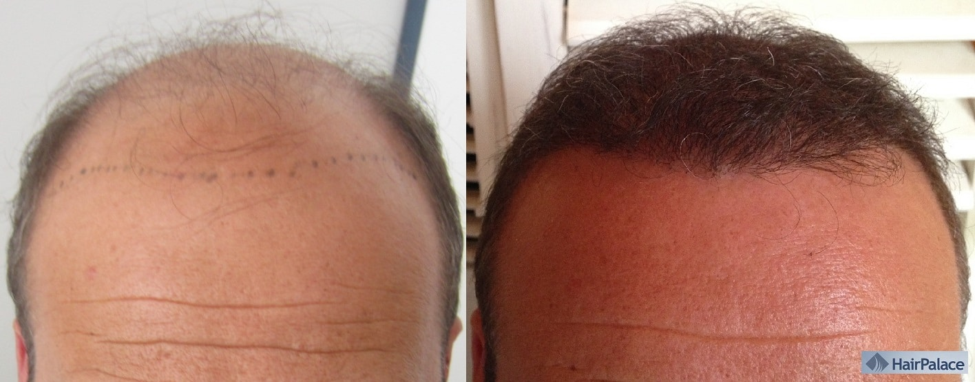 before after hair transplant hairpalace result
