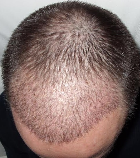 3 weeks after hair transplant surgery
