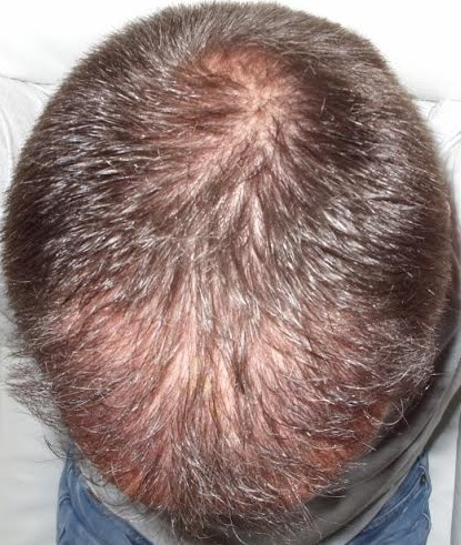6 month result hair transplant
