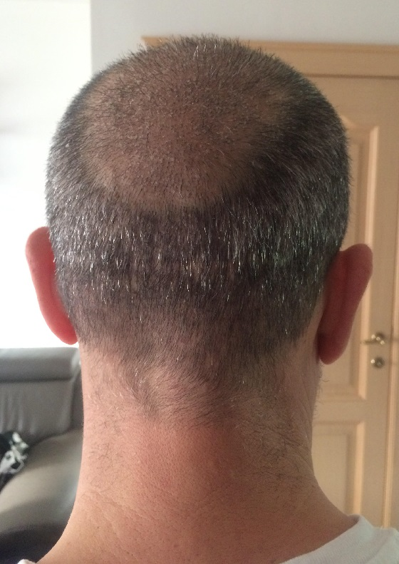 1 week after fue hair transplant
