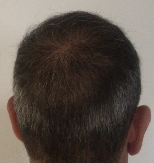 1 year result after hair transplant hairpalace