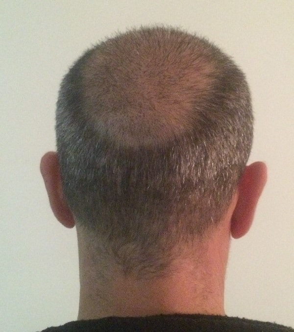 3 weeks after hair transplantation