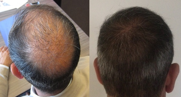 before after result hair transplant surgery hairpalace
