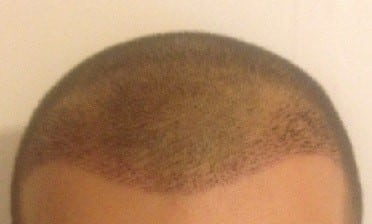 1 week after the fue hair transplant