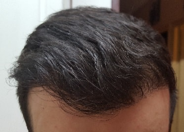 1 year after hair transplant surgery