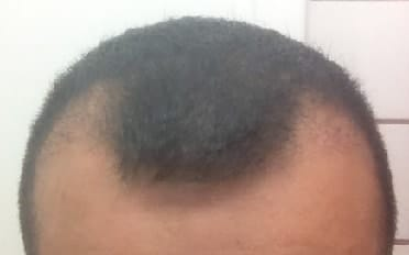 3 months after the hair transplantation